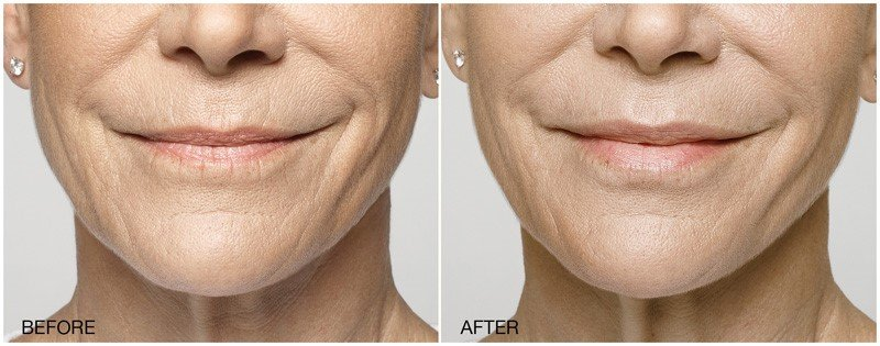Best Treatment for Frown Lines
