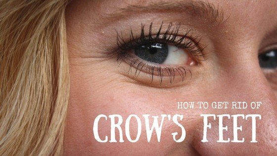 How To Get Rid Of Crow's Feet 1