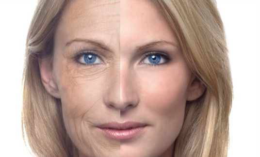 How to Get Rid of Wrinkles this Christmas