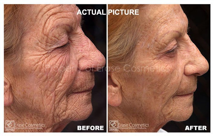 Muriel Before and after photo
