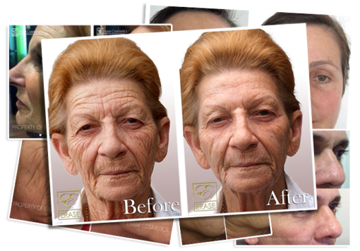 3 Minute Facelift Serum Before and After Photo